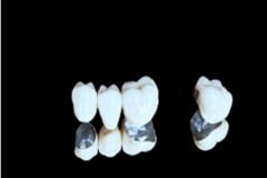 医疗器械定制式固定义齿